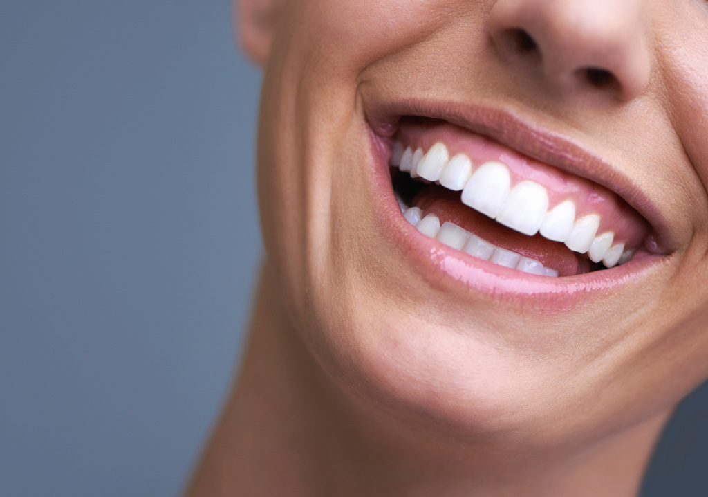 How to get a Hollywood smile from a dentist